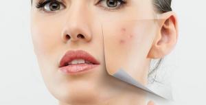 mascarilla acne