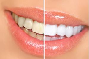 blanquear los dientes remedios caseros y faciles