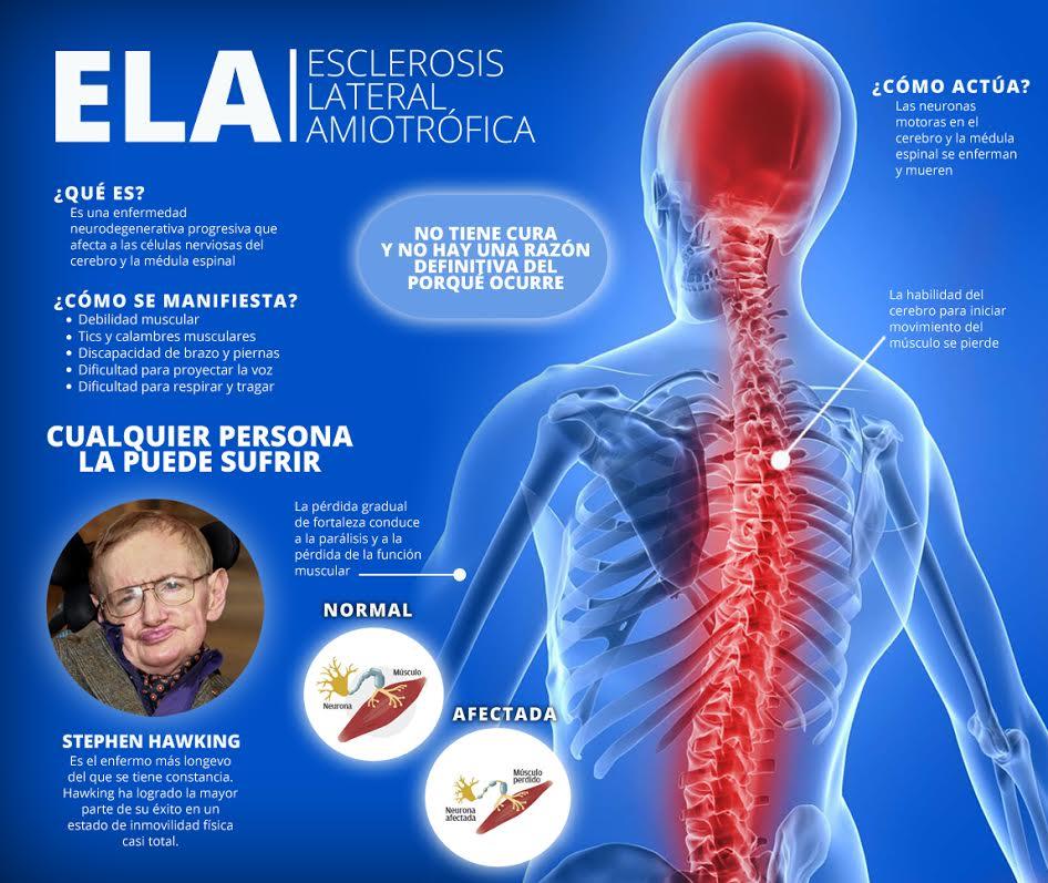 Esclerosis lateral amiotrófica o enfermedad de Lou Gehrig.